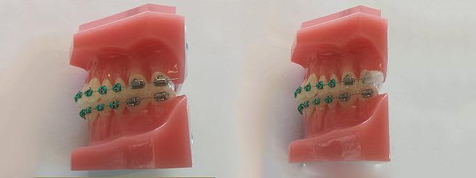 Nisco-Orthodontics Emergency Care