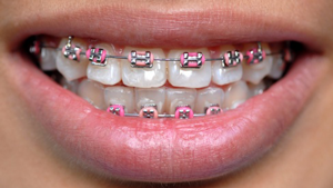 Braces Nisco Orthodontics