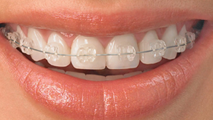 Ceramic Braces Nisco Orthodontics